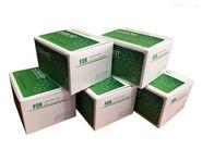 可溶性白细胞分化抗原ELISA检测试剂盒报价