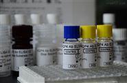 神經免疫相關抗體檢測-AQP4抗體