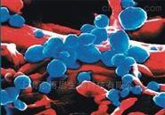 德国IBL  传染病系列ELISA检测试剂盒