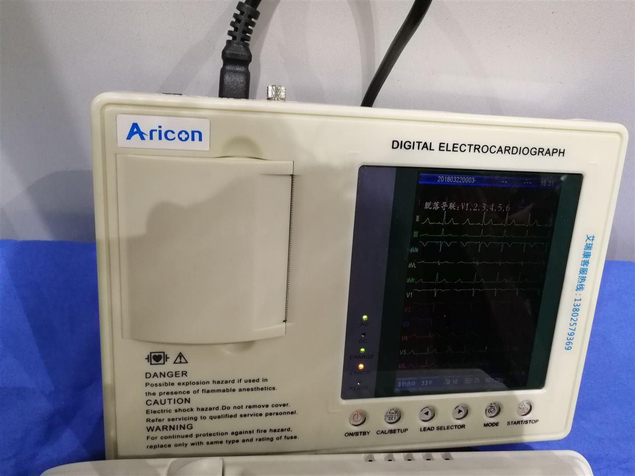 采用独特的高精度数字滤波器消除基线漂移和其他干扰,不对心电波形