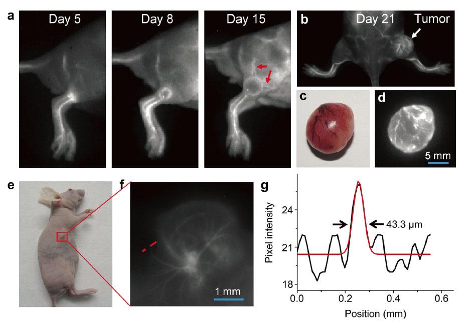 活体肿瘤内部新生血管实时观察