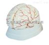 脑动脉模型
